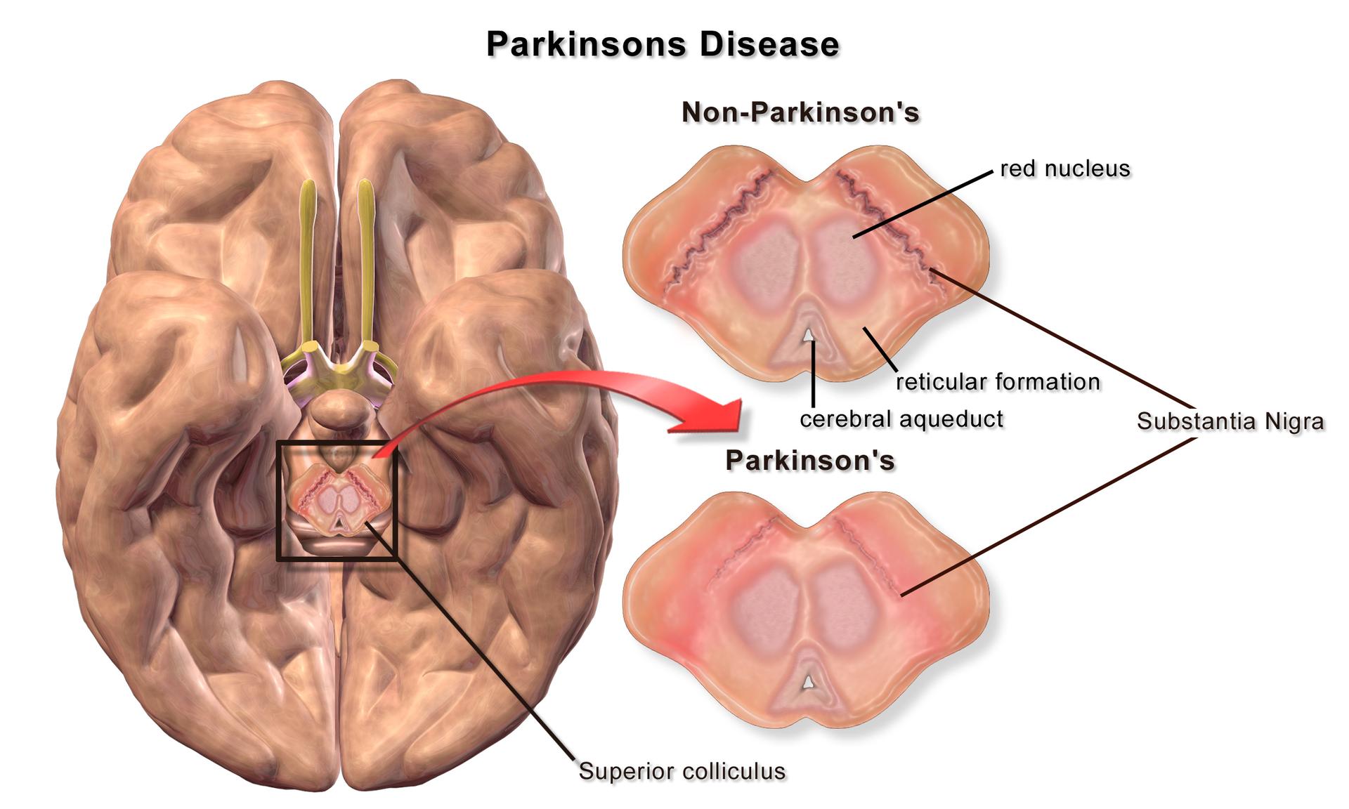 141222 Blausen_0704_ParkinsonsDisease[1]