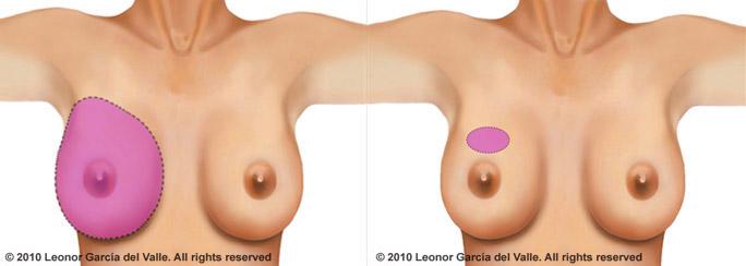 150222 st_mastectomy_lumpectomy