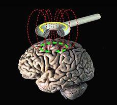 Transcranial_magnetic_stimulation