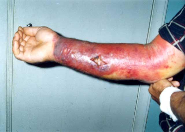 Skin_reaction_to_anthrax